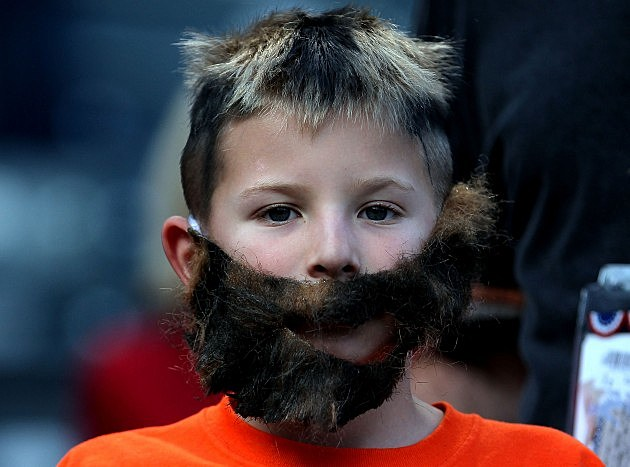 Beard Implants are the New Trend for Men