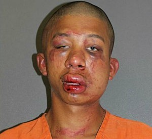 Father Viciously Beat Teen Molester Until Police Arrived